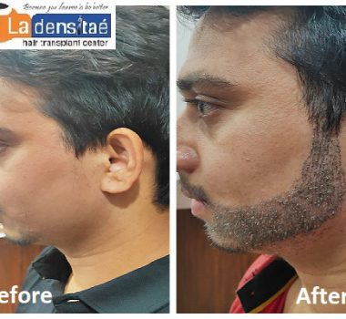 La densitae Effective Beard hair Transplant in Pune