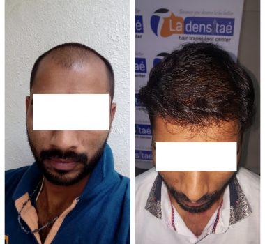 Best Hair Restoration Center in Pune