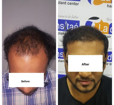 La densitae effective Hair Transplant Clinic in Pune
