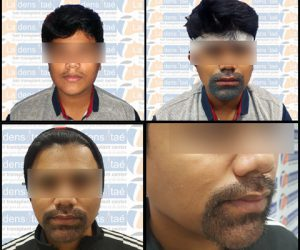 french beard transplant in pune