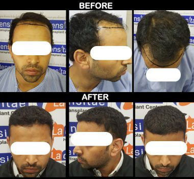 before-after-ladensitae patient results in pune