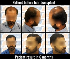 Premkumar Pandey-before-after results hair transplant in pune
