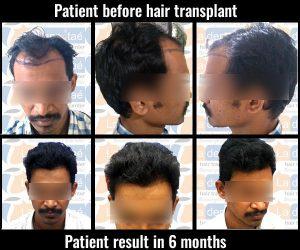 abhijeet-babar hair transplant results