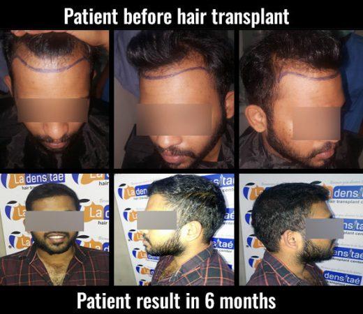 aditya hair transplant results in pune