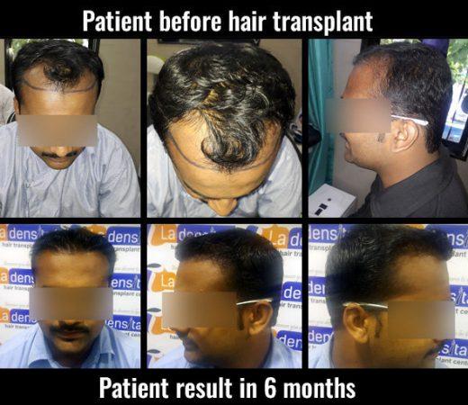 kiran hair transplant results in pune