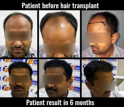 manoj hair transplant results in pune