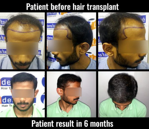 pranav hair transplant results in pune