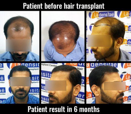 prem ladensitae hair transplant results hair transplant in pune