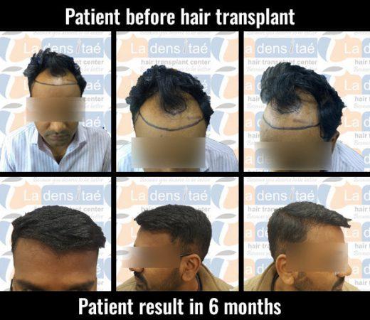 sambhaji-ladensitae hair transplant in pune