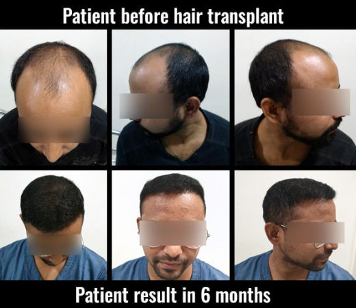 saurabh before after results hair transplant pune