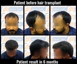 shiv-kumar before after results hair transplant in pune