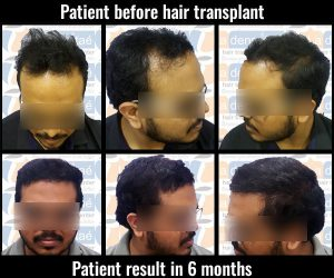 sumit salve hair transplant results hair transplant in pune