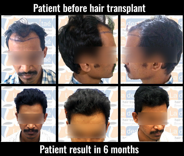 abhijeet babar before after results hair transplant in pune