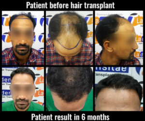 altaf shaif before after results hair transplant in pune