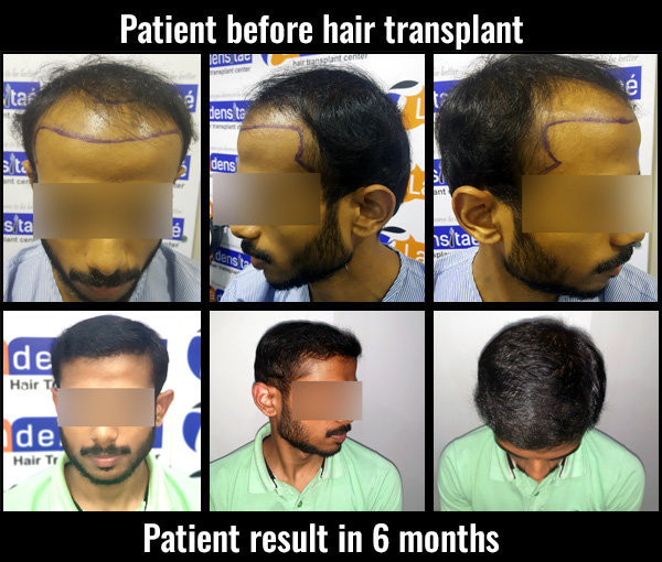 pranav before after results hair transplant in pune