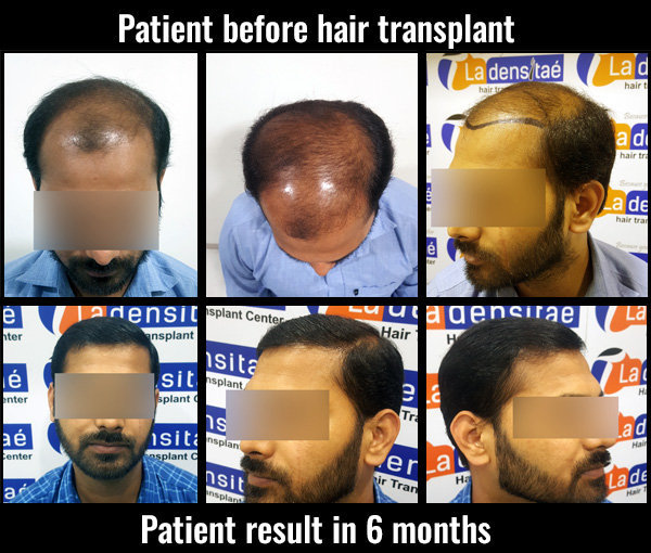 prem before after results hair transplant pune