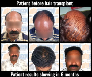 rishikeshmore-after-results-hair transplant in pune