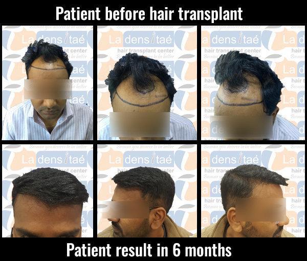 sambhaji-ladensitae-results hair transplant pune