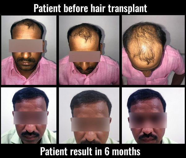 somnath-before-after-results-hair- transplant pune