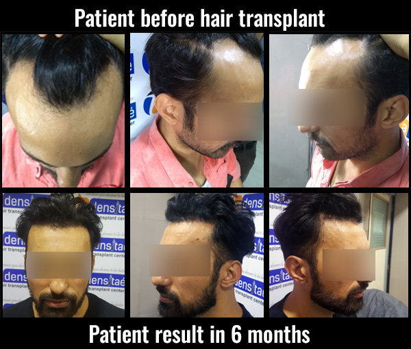 vinod-patient-before-after-hair transplant in pune