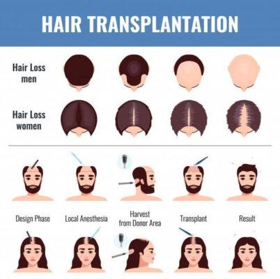 Female-Hair-Transplant
