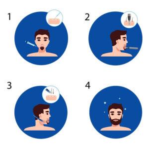 Process of Beard Transplant