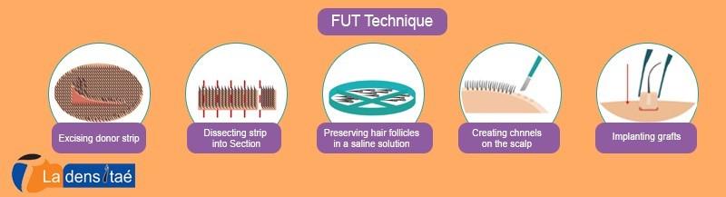 FUT Techniques