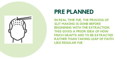 Pre Planning in Real-time FUE