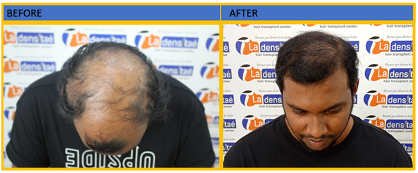 case_study_1-before-after