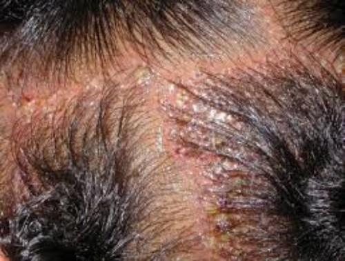 Inflammation and hair loss