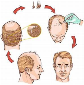expect-after-hair-transplant