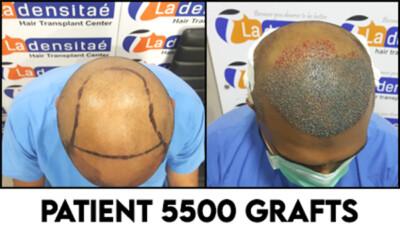 5500-grafts