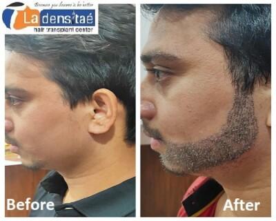 La densitae Effective Beard hair Transplant in Pune