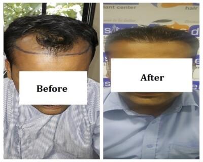 Hair-Transplant-Center-in-Pune