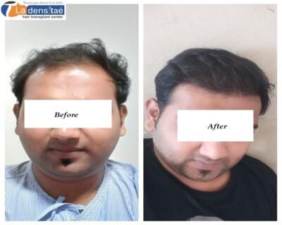 Hair-transplant-pune