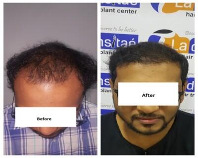 La-densitae-effective-Hair-Transplant-Clinic-in-Pune