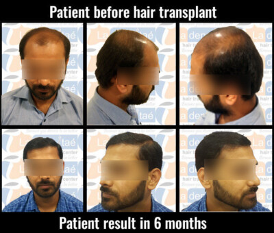 Premkumar Pandey before after results hair transplant in pune