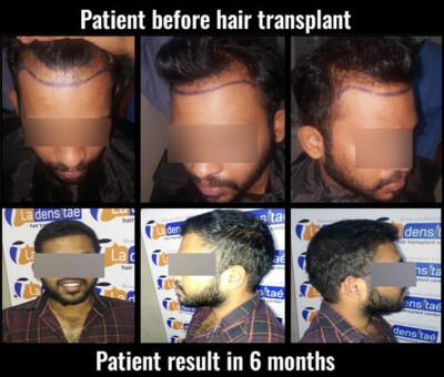 aditya before after results hair transplant in pune