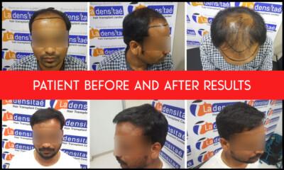 collage patient-2