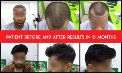 collage-patient-follicle-patient-results-5-months