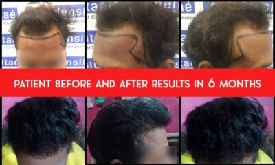 collage-patient-results-ladensitae