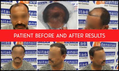 collage patient