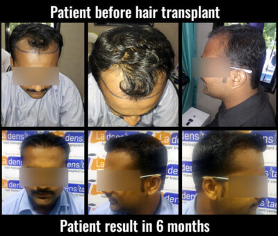 kiran before after results hair transplant in pune