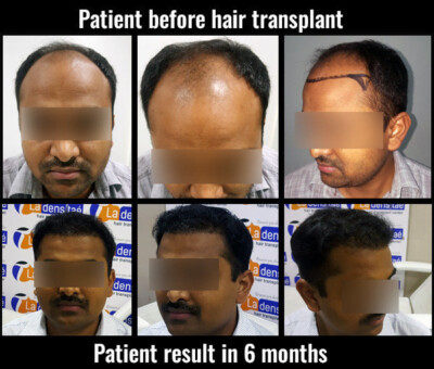 manoj before after results hair transplant in pune