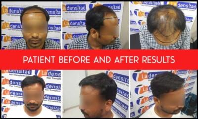 patient-results-hair-transplant.-ladensitaejpg