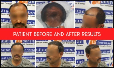 patient-results-hair-transplant