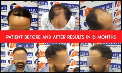 patient-results-ladensitae
