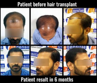 prem before after results hair transplant pune