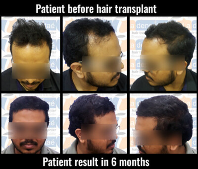 sumit salve before after results hair transplant in pune