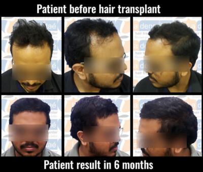 sumit salve hair transplant results hair transplant in pune